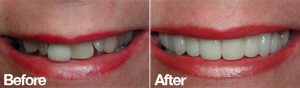 mis aligned teeth