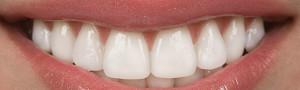 salinas-dental-veneers