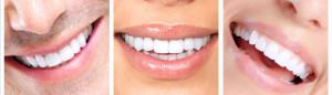 smile-makeover-plano