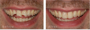 tooth bond before after